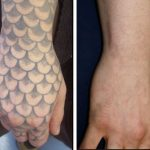 before and after hand tattoo removal