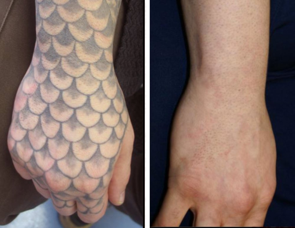 Real tattoo removal in lexington ky see the before for How effective is tattoo removal