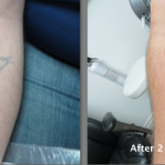 Tattoo Removal Result after two treatments