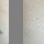 Before and After Skin Tattoo Removal Result
