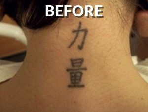 Back Neck Before Tattoo Removal