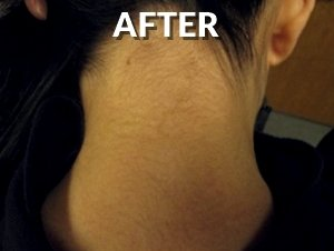 Back Neck After Tattoo Removal