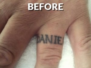 Finger Before Tatttoo Removal