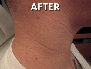 After Neck Tattoo Removal