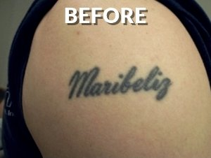 Before Name Tattoo Removal