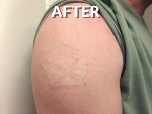 Amazing Result after Tattoo Removal