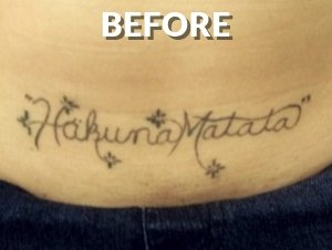 Before the Tattoo Removal